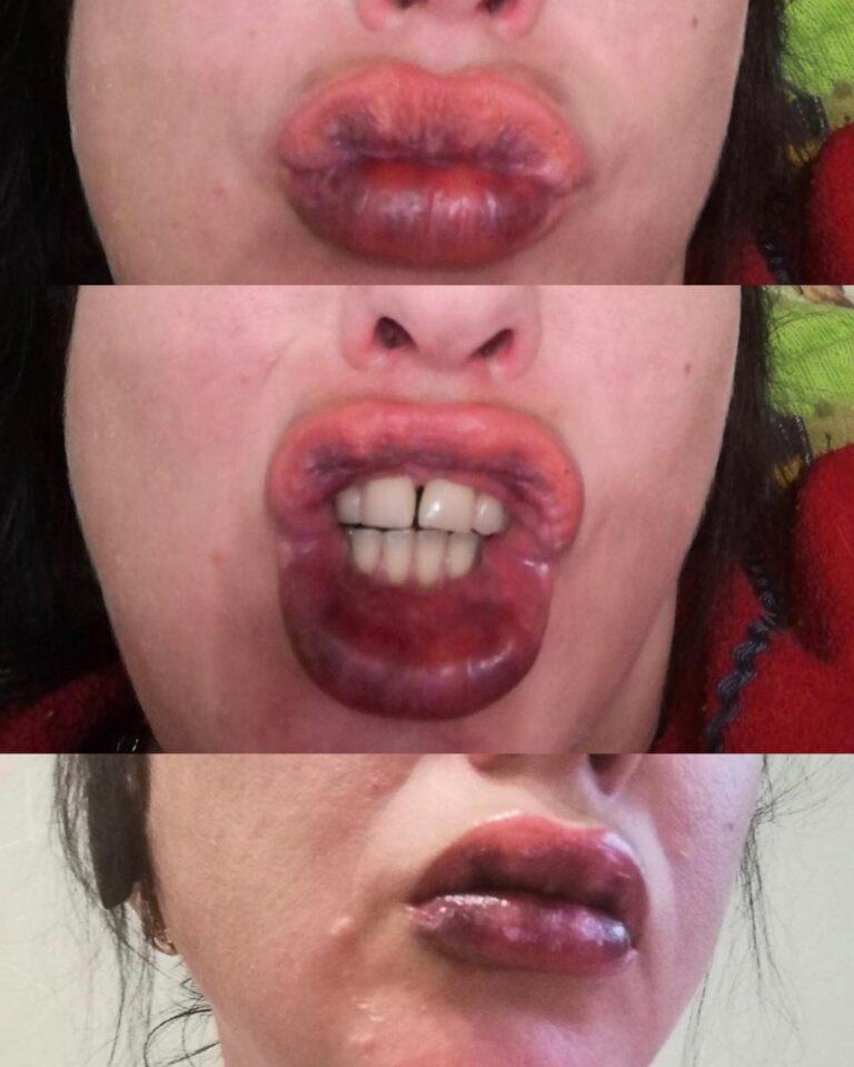 Акційна операція зі збільшення губ обернулася для українки шокуючими наслідками